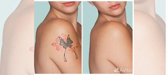 удаление татуировок татуажа